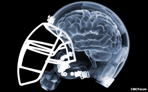 Concussion Post 18 – How the N.F.L. manipulated concussion research