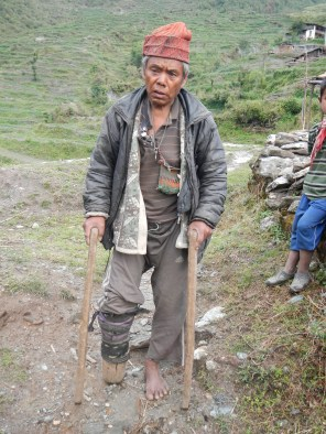 A very poor man in the village of Tipling. He lost the lower part of his right leg 24 years ago.