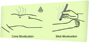 Moxibustion Drawing