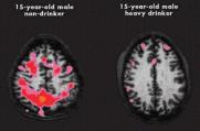 Afbeeldingsresultaat voor alcohol hersenschade