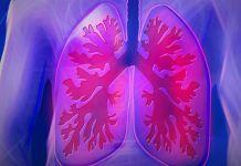 Claves para detectar a tiempo la fibrosis pulmonar idioática (Foto: Pixabay)