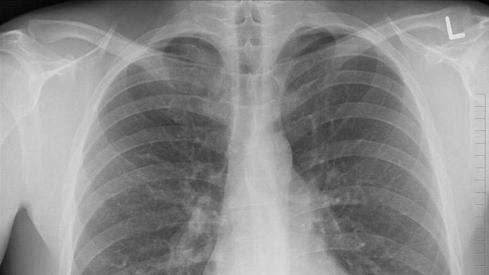 Estrategias para diagnosticar la fibrosis pulmonar idiopática (Foto: Pixabay)