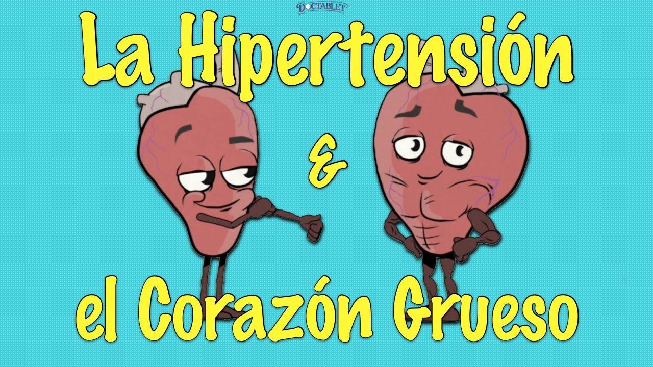 La Hipertrofia Ventricular Izquierda y la Hipertensión..
