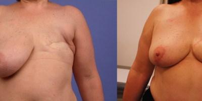 avant-apres-reconstruction-mammaire-autologue-antibes-5