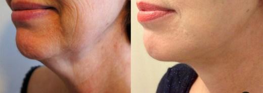 lifting-cervico-facial-nice-2