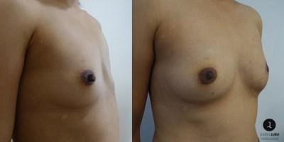 reconstruction-mammaire-par-prothese-docteur-luini-chirurgie-esthetique-nice-3