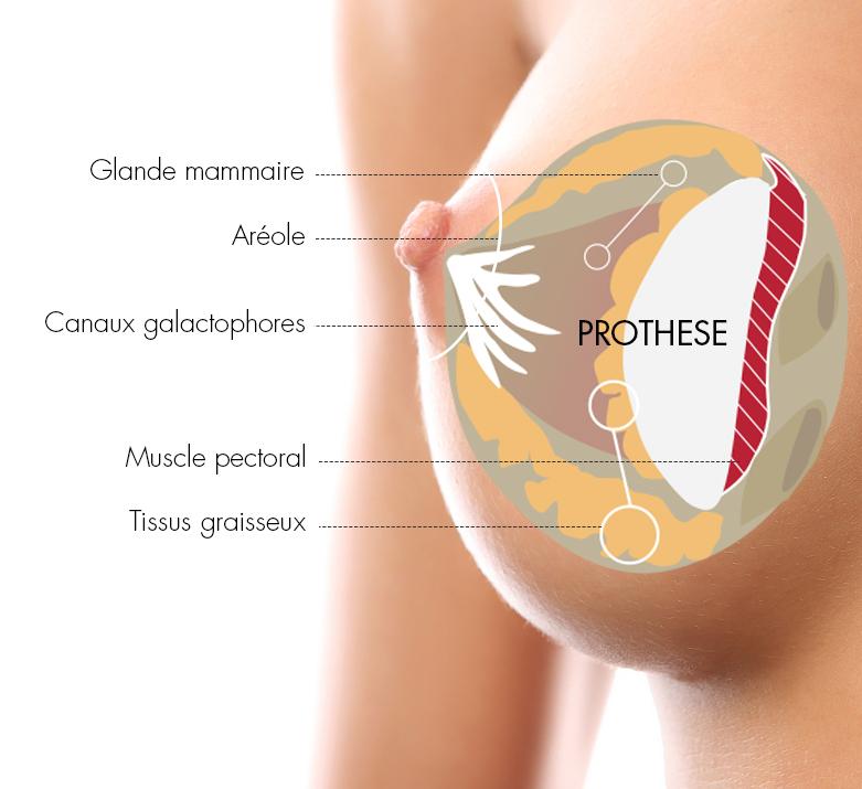 chirurgie esthétique du sein augmentation mammaire par prothèse mammaire