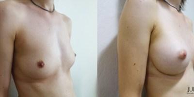 patient001-augmentation-mammaire-v2