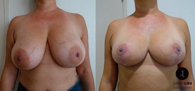 réduction mammaire nice