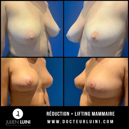 Réduction – Lifting mammaire