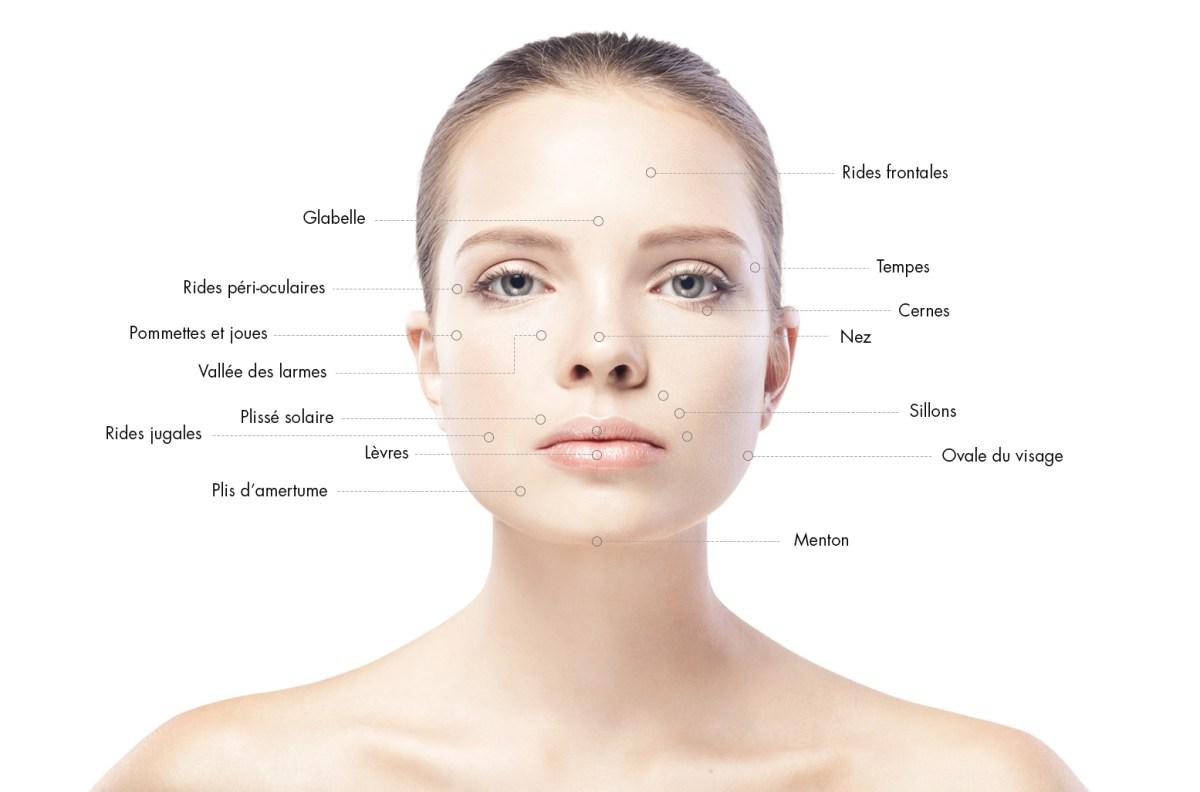 zones d' injections d'acide hyaluronique en médecine esthétique