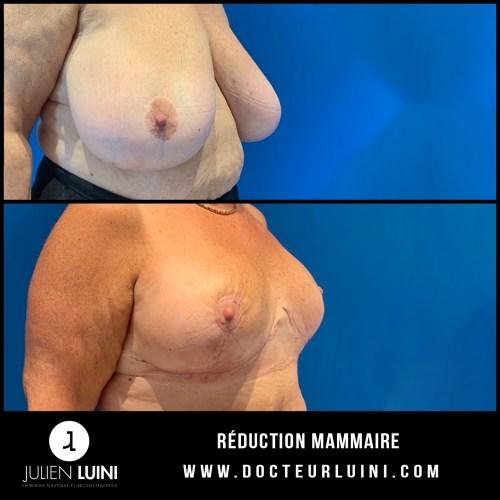 chirurgie esthétique du sein la réduction mammaire