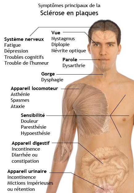 Sclrose En Plaque Quels Sont Les Symptmes Docteur