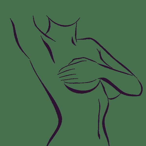 mamas tuberosas
