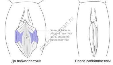 Типы строения женских гениталий: Барби, подкова, слоёный пирожок. А что у вас «там»?