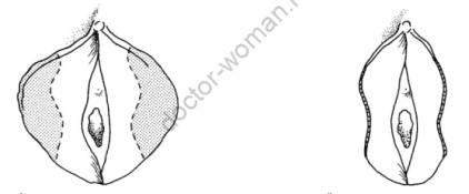 Неэстетичный вид капюшона клитора после пластики половых губ. Можно ли помочь пациенткам в такой ситуации?