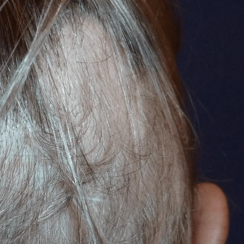 Alopecia post covid