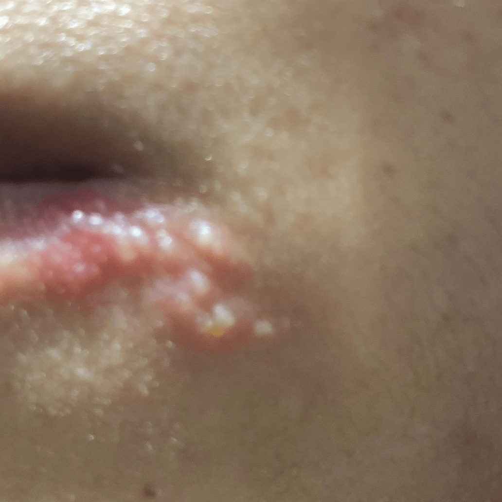 Herpes labial post covid