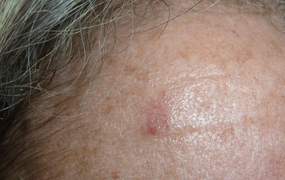 Cancer-de-piel-no-melanoma