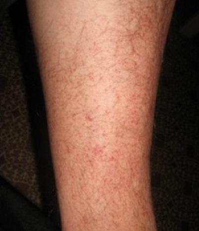 черный снег: красное зудящее пятно на ноге фото