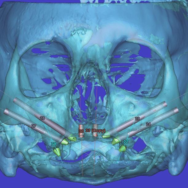 Implantes zigomaticos y Pterigoideos