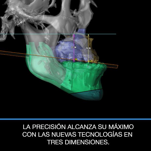 planificación cirugía ortognática