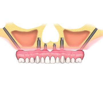 Implantes cigomaticos i