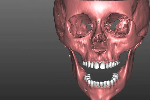 cirujano maxilofacial andres peña