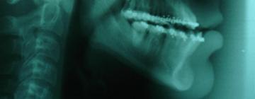 radiografia ortognatica