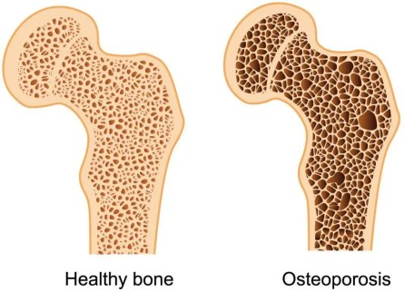 osteoporosis affects bone density, middlesbrough
