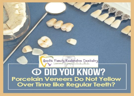 image of Porcelain Veneers do not yellow over time