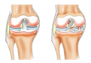 inflamația meniscului genunchiului tratament de 2 grade)