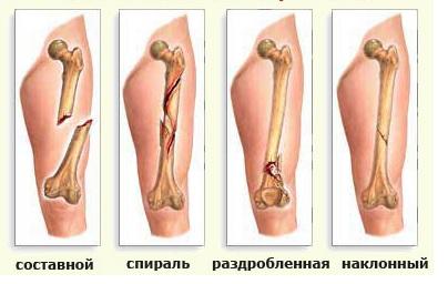 Перелом руки у ребенка: особенности и методы лечения. Особенности лечения и реабилитации детей при различных переломах