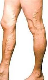 Grilă vasculară pe picioare. Cum să scapi de plasa venoasă pe picioare