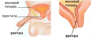 A cystitis és az urethritis hatékony kezelése