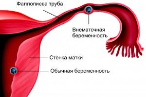 fáj a loin prosztatitis vagy vese