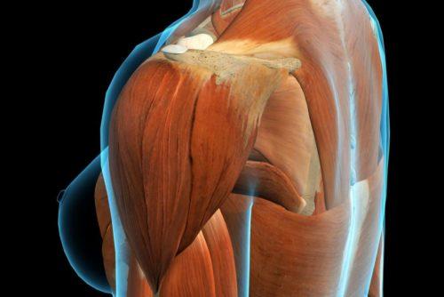 Дельтоподібний м'яз: біль, класифікація болю і лікування