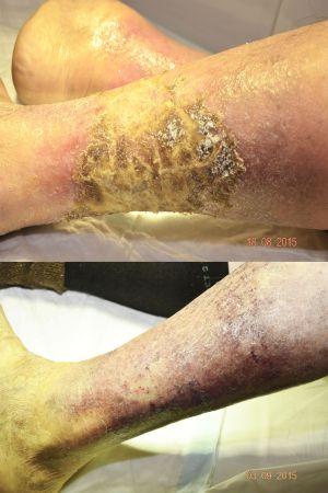 úlcera antes y después