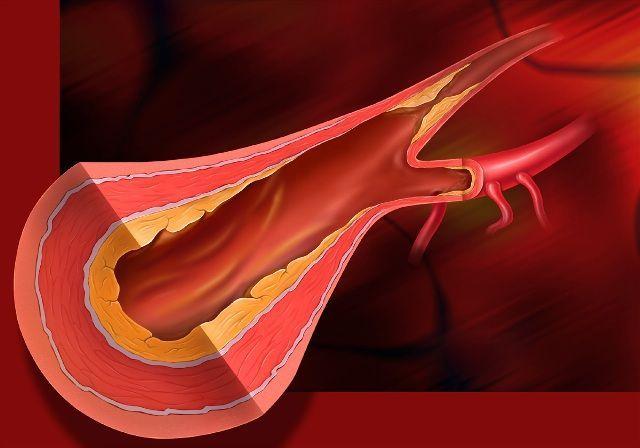 placa colesterol