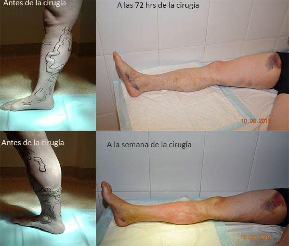 Cirugía de varices
