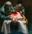 ORGANHARVESTING surgeons