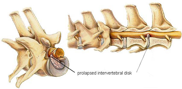 HIlls-vertebrae-disc.jpg?fit=604%2C295&ssl=1