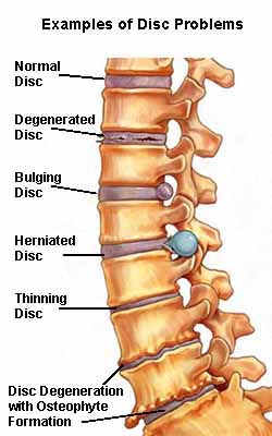 Disc-Problems-SpineUniverse.jpg?fit=250%2C400&ssl=1