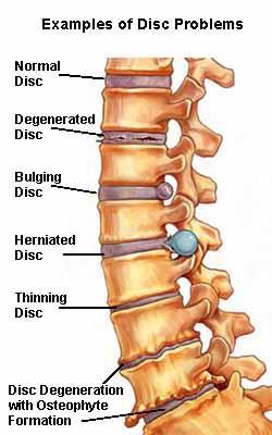 IVDD slipped disc back pain