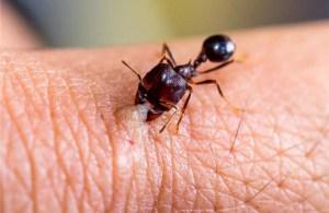 Karınca ısırığına ne iyi gelir?