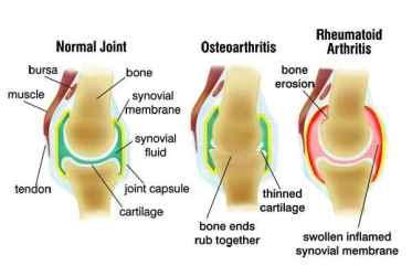 normal-rheumatoid-osteo-arthritis