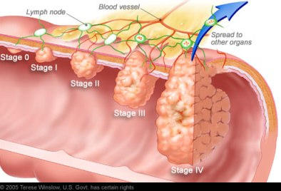 Colon Cancer Malpractice Lawyer NJ: Image of Colon Cancer Growth Stages