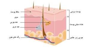 Aufbau-Haut