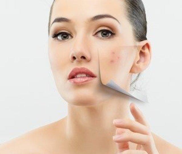 Cara Memulihkan Kulit Wajah Kusam Dan Menghilangkan Flek Hitam
