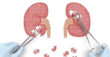 Doktersehat-cara-menjaga-kesehatan-ginjal